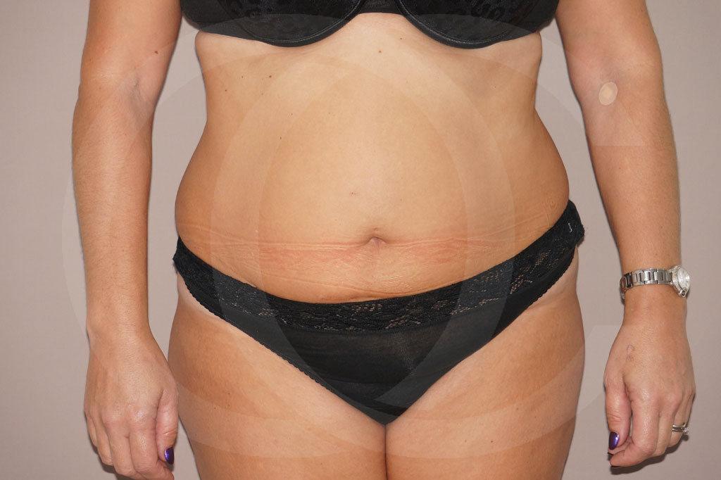Abdominoplastia Madrid foto cirugia del abdomen antes 01