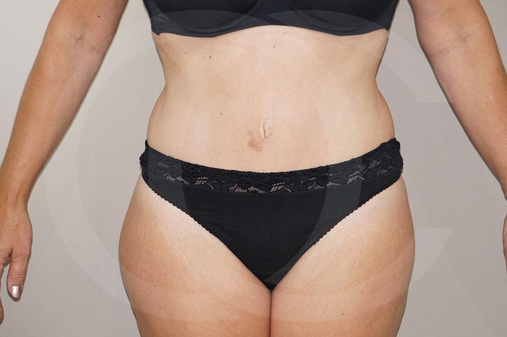 Abdominoplastia Madrid foto cirugia del abdomen después 02