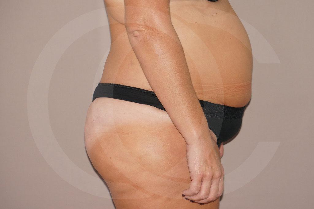 Abdominoplastia Madrid foto cirugia del abdomen antes 03