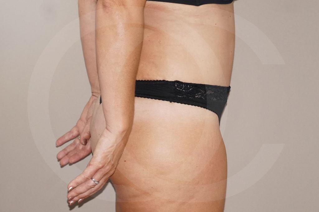 Abdominoplastia Madrid foto cirugia del abdomen después 04