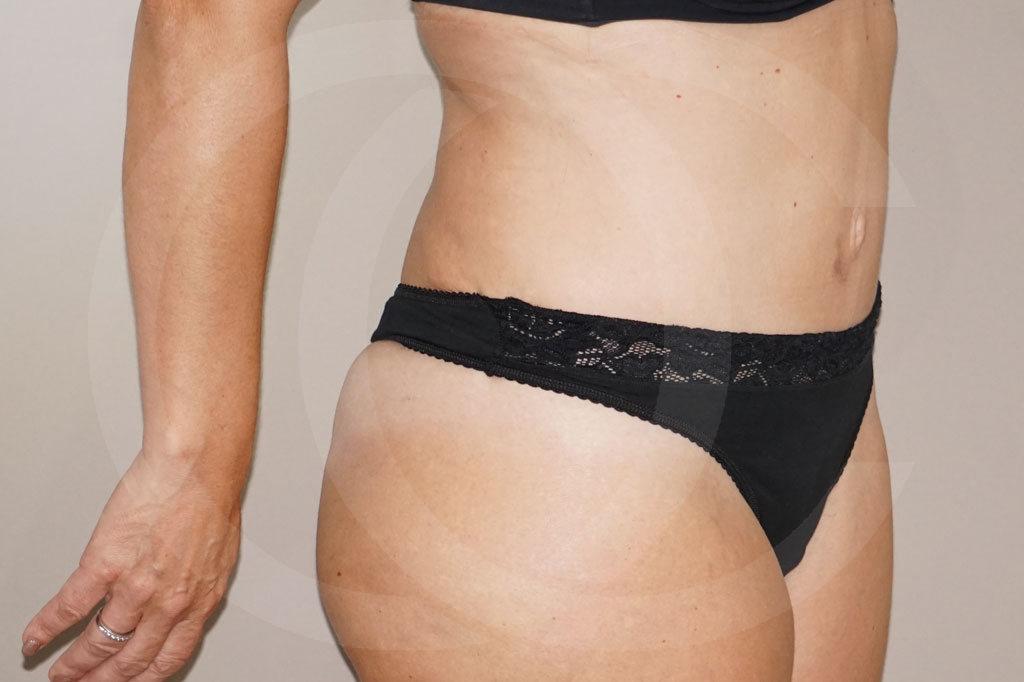 Abdominoplastia Madrid foto cirugia del abdomen después 06