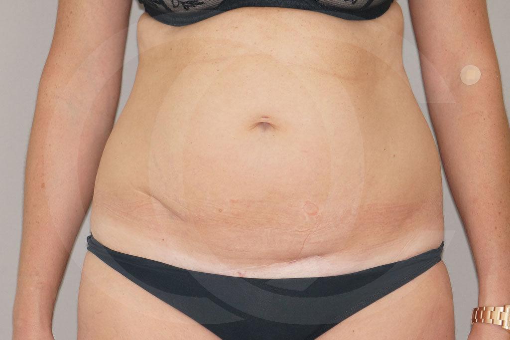 Abdominoplastia Madrid foto eliminar la grasa abdominal antes 01