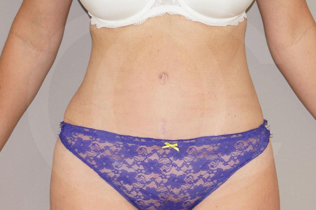 Abdominoplastia Madrid foto eliminar la grasa abdominal después 02