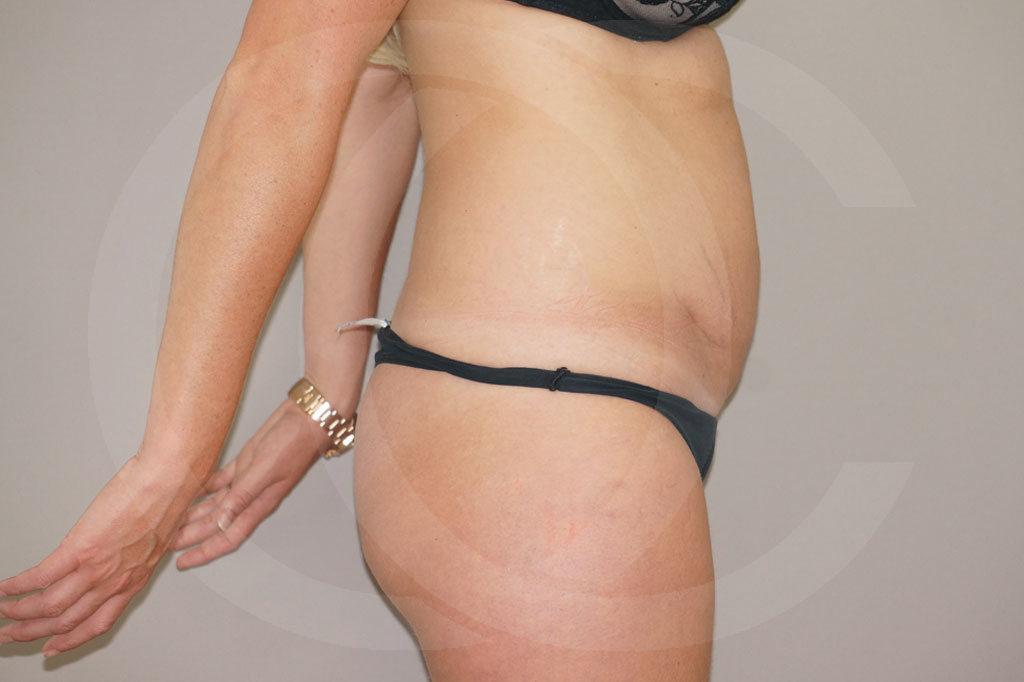 Abdominoplastia Madrid foto eliminar la grasa abdominal antes 05