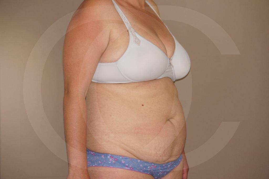 Abdominoplastia Madrid foto cirugia del abdomen antes 05