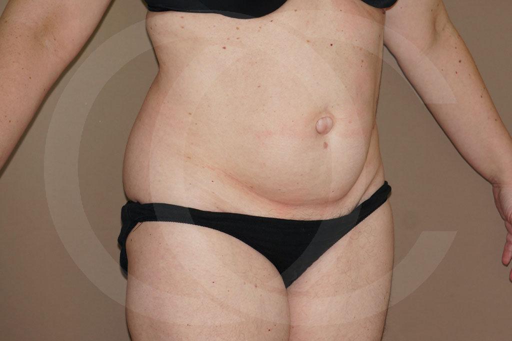 Abdominoplastia Madrid foto con liposucción antes 03