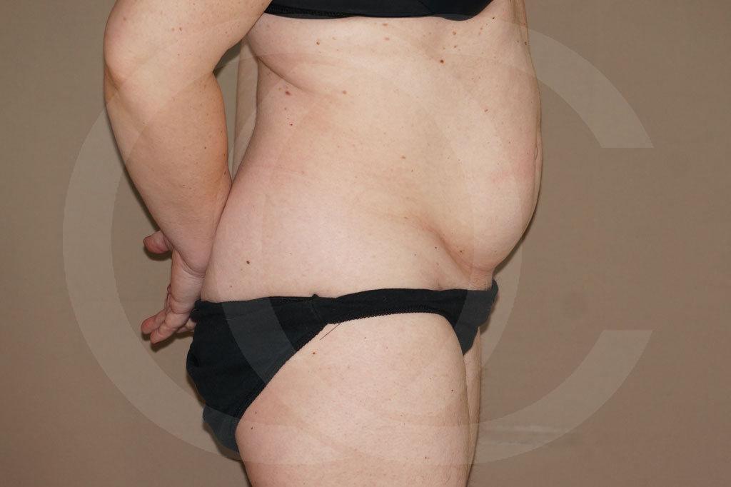 Abdominoplastia Madrid foto con liposucción antes 05
