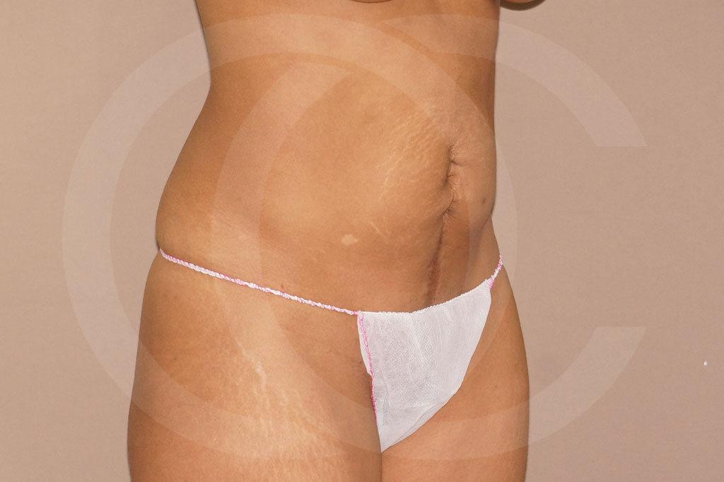 Abdominoplastia Madrid foto cirugía secundaria antes 03