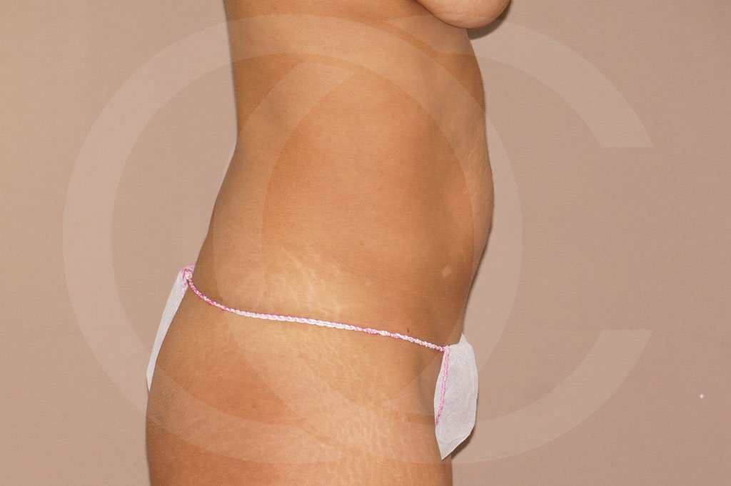 Abdominoplastia Madrid foto cirugía secundaria antes 05