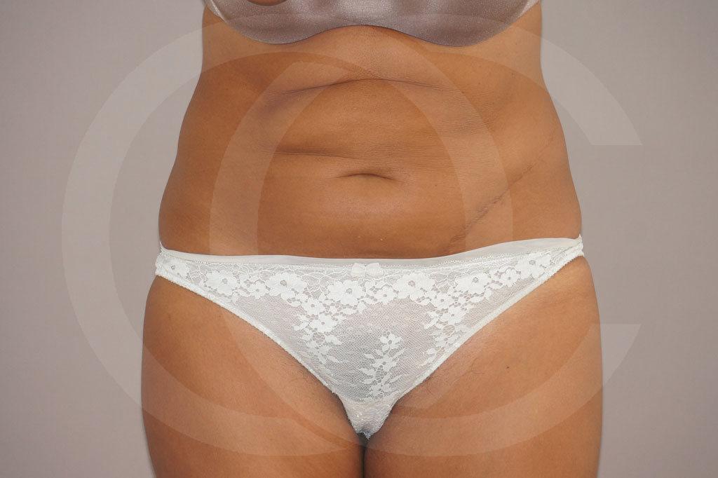 Abdominoplastia Madrid foto cirugía reducción de abdomen antes 01