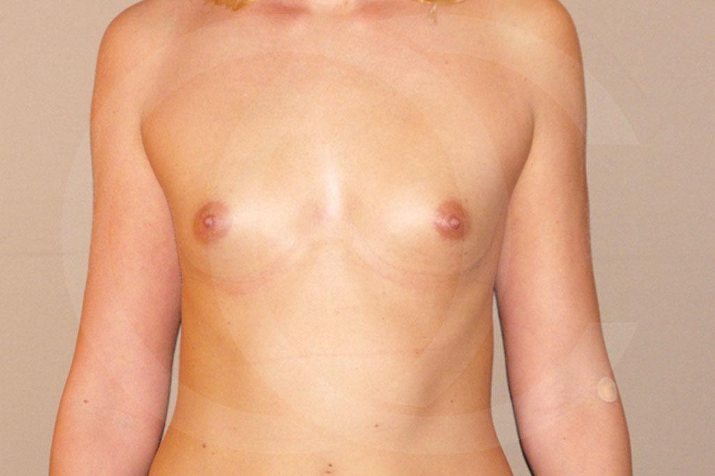 Aumento de senos Madrid foto con implantes de silicona antes 01