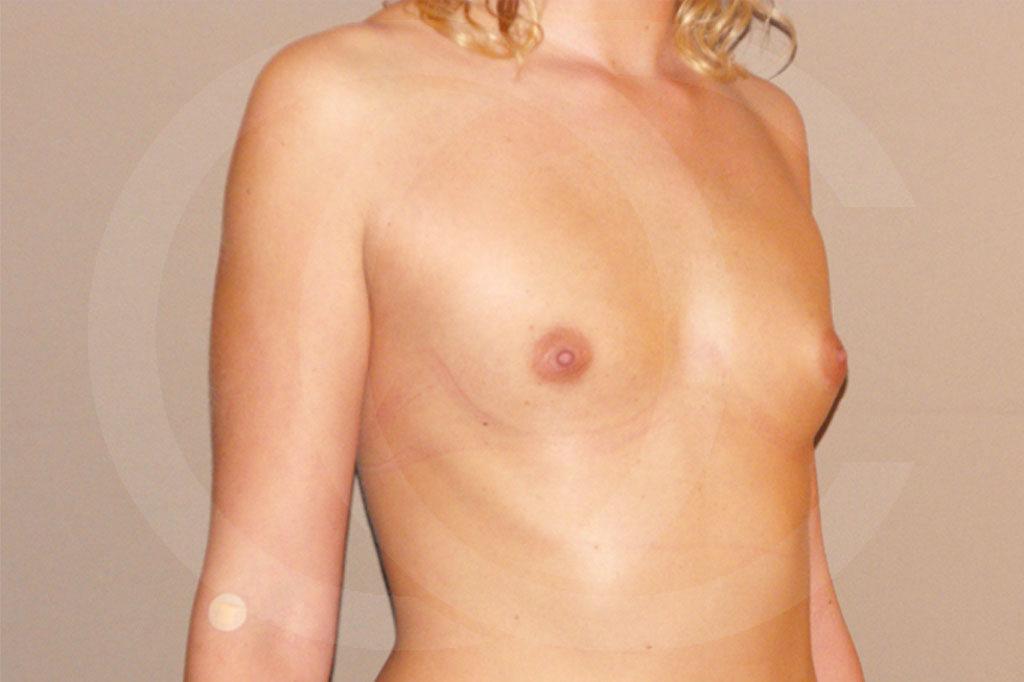 Aumento de senos Madrid foto con implantes de silicona antes 03