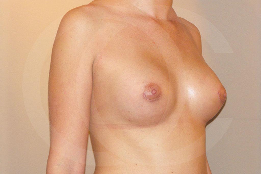 Aumento de senos Madrid foto con implantes de silicona después 04