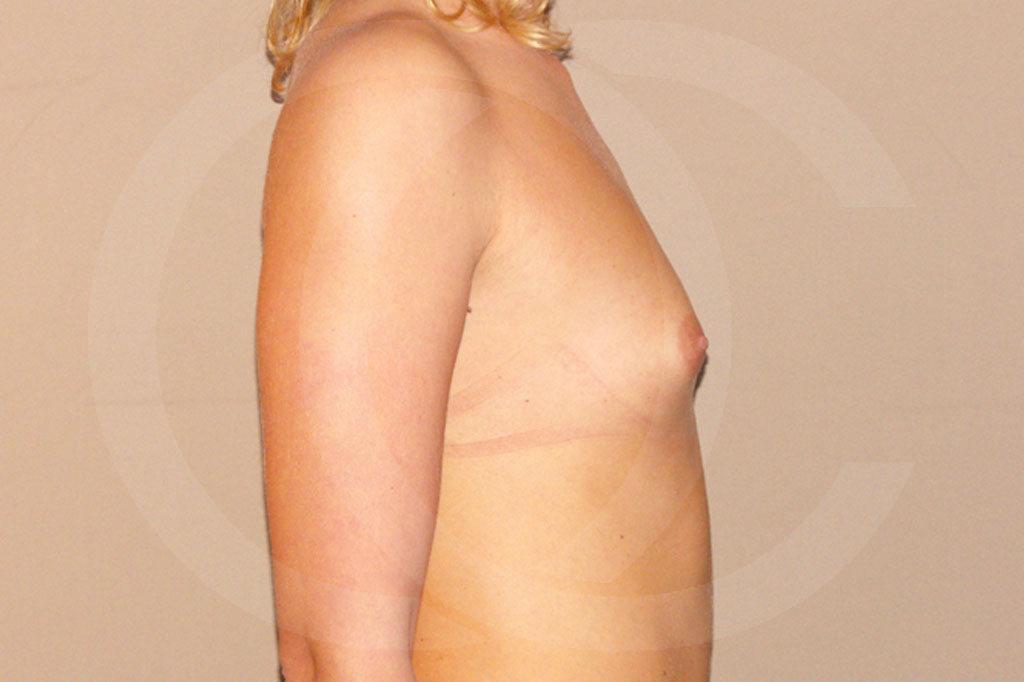 Aumento de senos Madrid foto con implantes de silicona antes 05