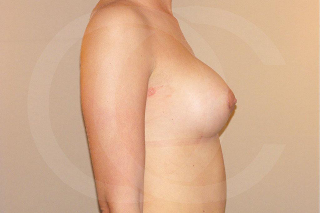 Aumento de senos Madrid foto con implantes de silicona después 06