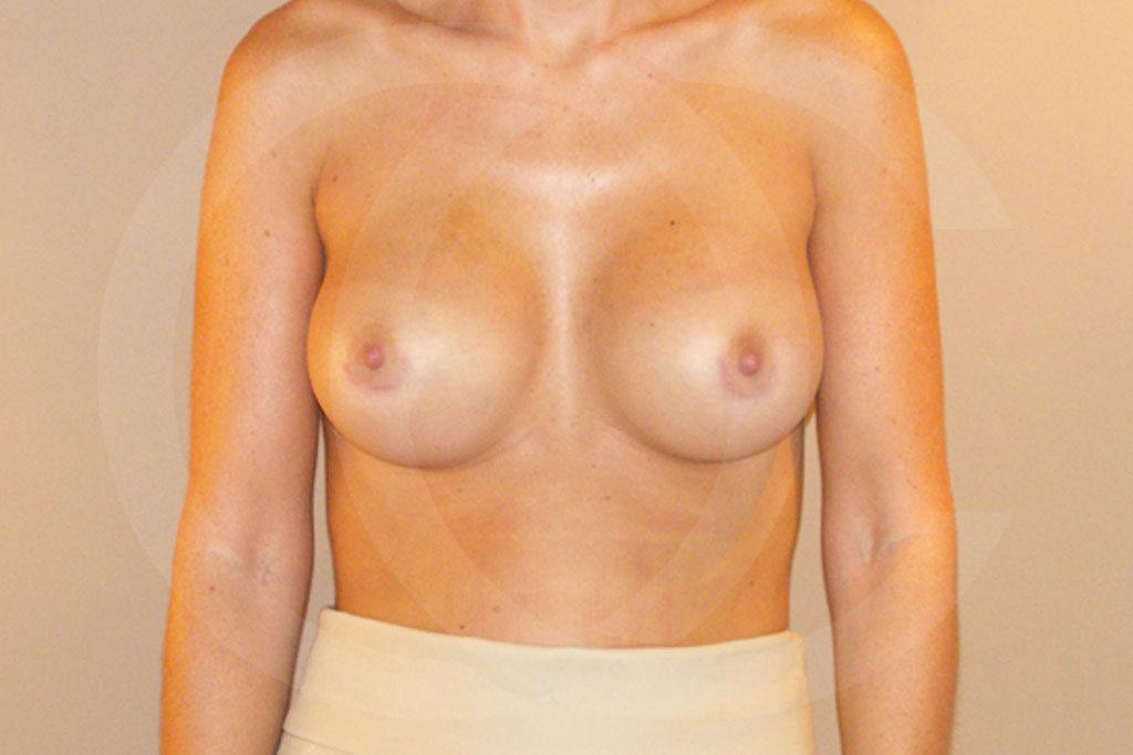 Aumento de senos Madrid foto posición subglandular después 02