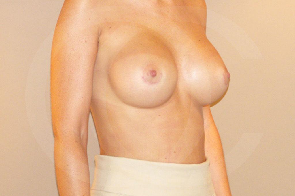 Aumento de senos Madrid foto posición subglandular después 04