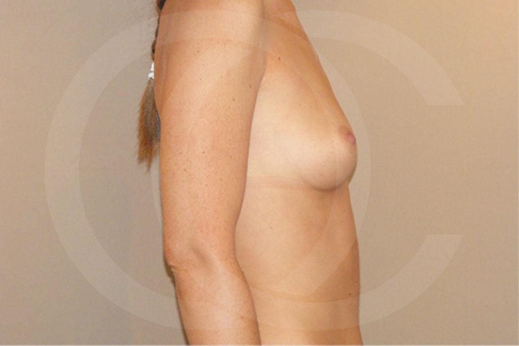 Aumento de senos Madrid foto posición subglandular antes 05