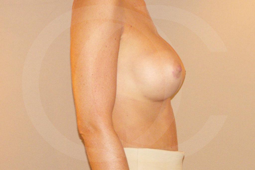 Aumento de senos Madrid foto posición subglandular después 06