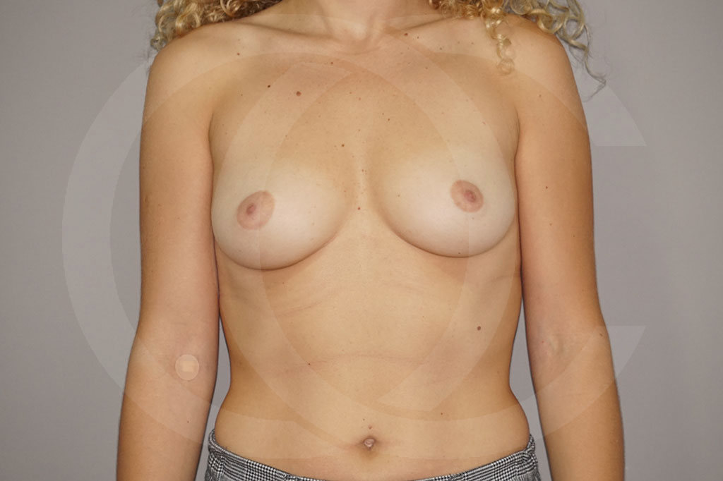 Aumento de senos Madrid foto incisión periareolar antes 01