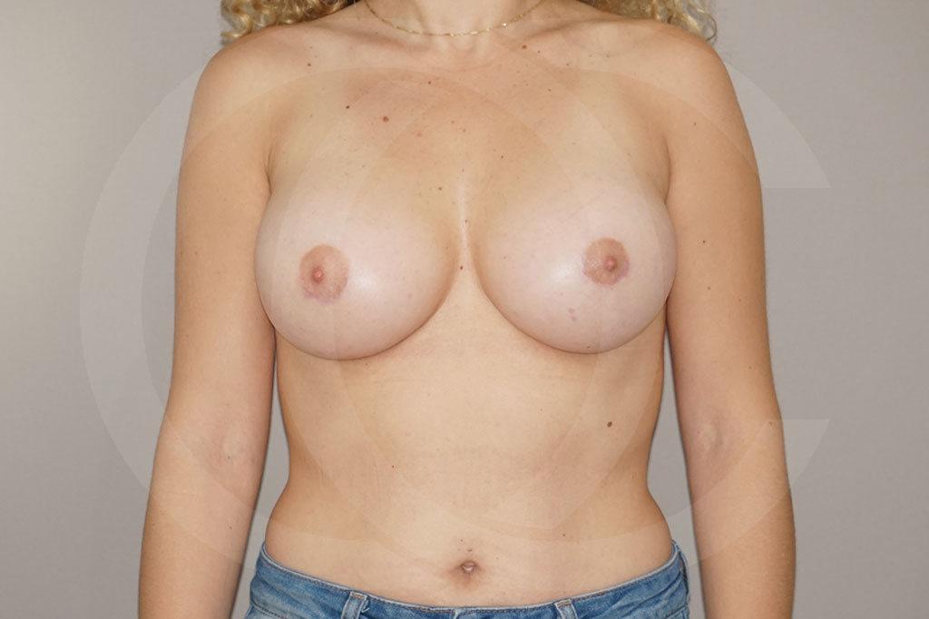 Aumento de senos Madrid foto incisión periareolar después 02