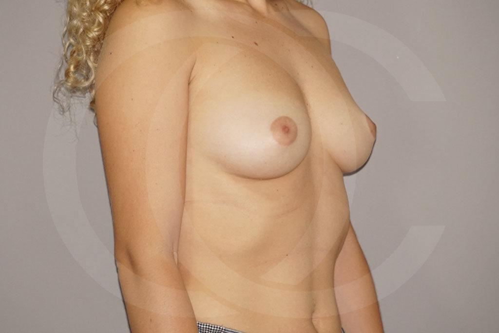 Aumento de senos Madrid foto incisión periareolar antes 03