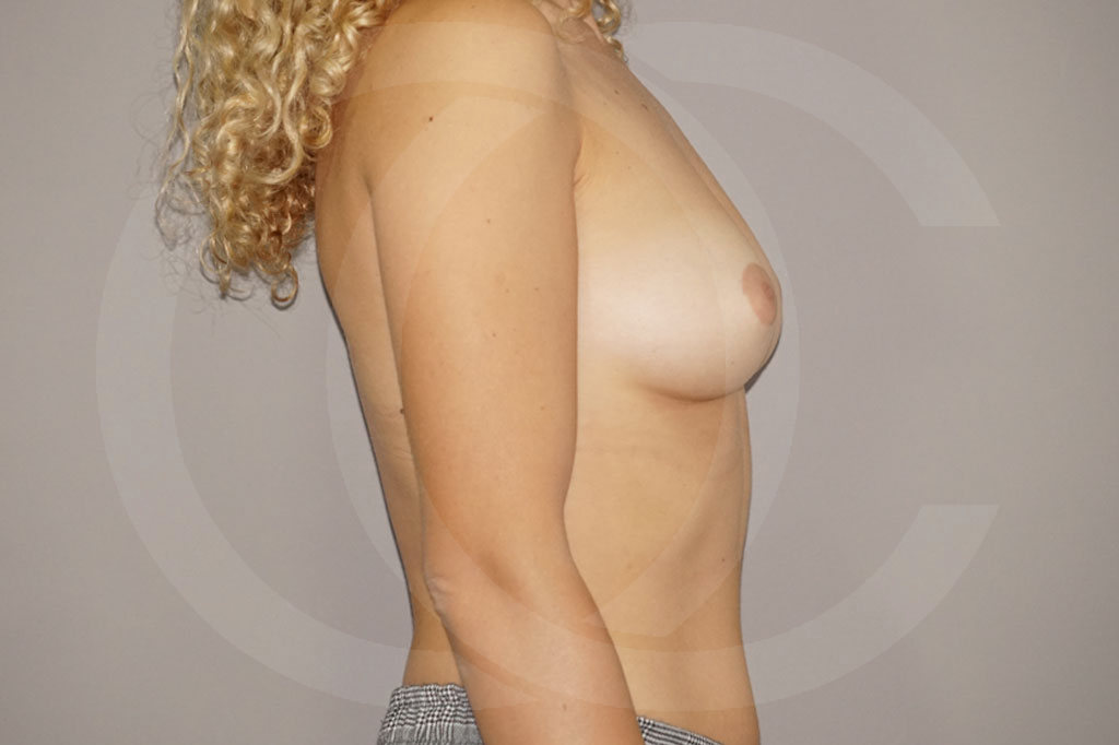 Aumento de senos Madrid foto incisión periareolar antes 05