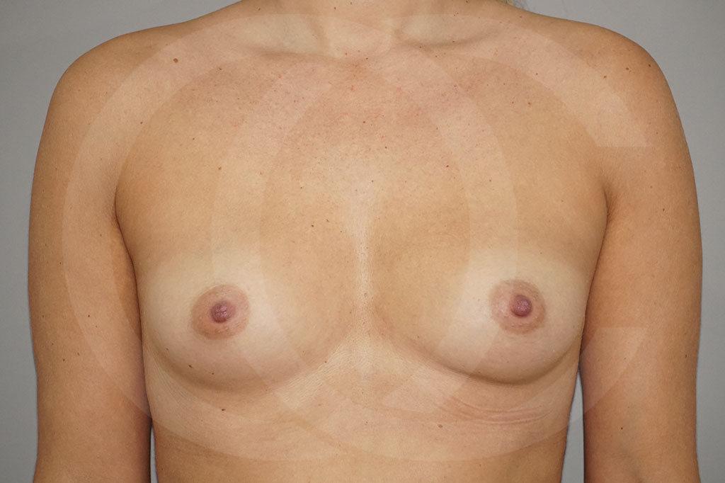 Aumento de senos Madrid foto 280cc Anatómico antes 01