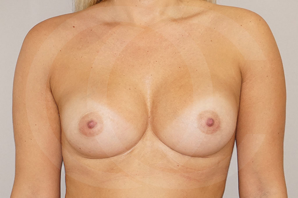 Aumento de senos Madrid foto 280cc Anatómico después 02