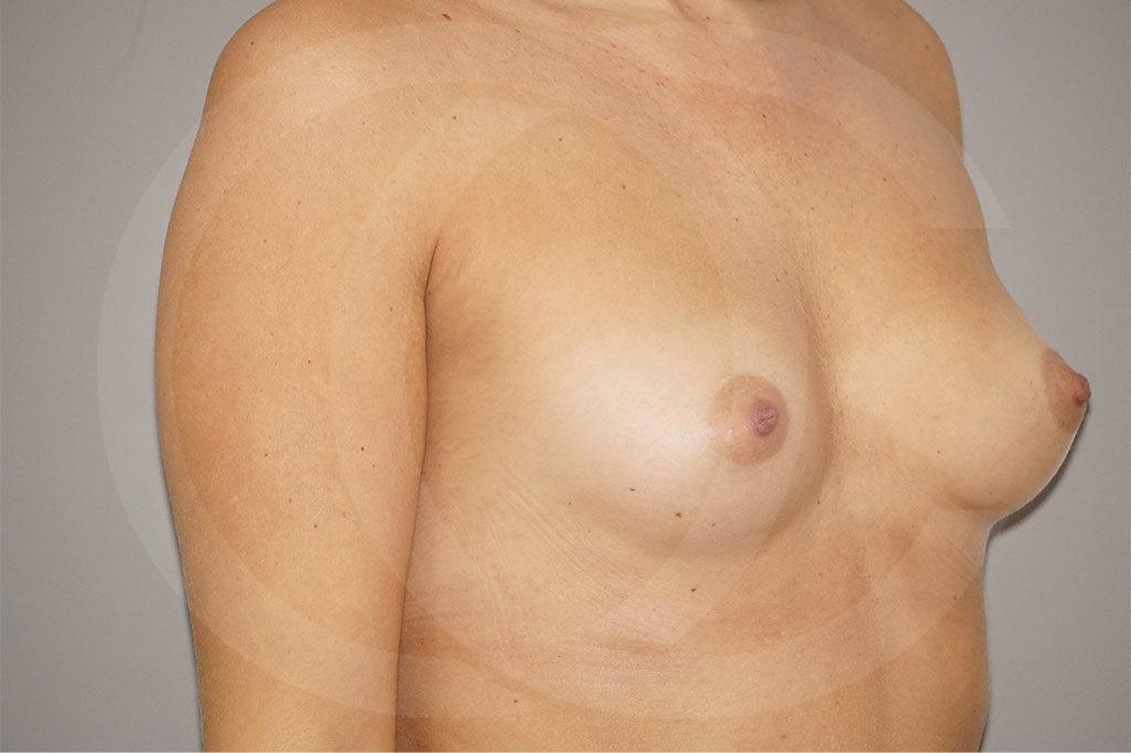 Aumento de senos Madrid foto 280cc Anatómico antes 03