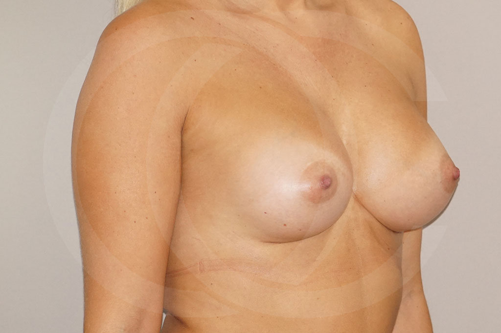 Aumento de senos Madrid foto 280cc Anatómico después 04