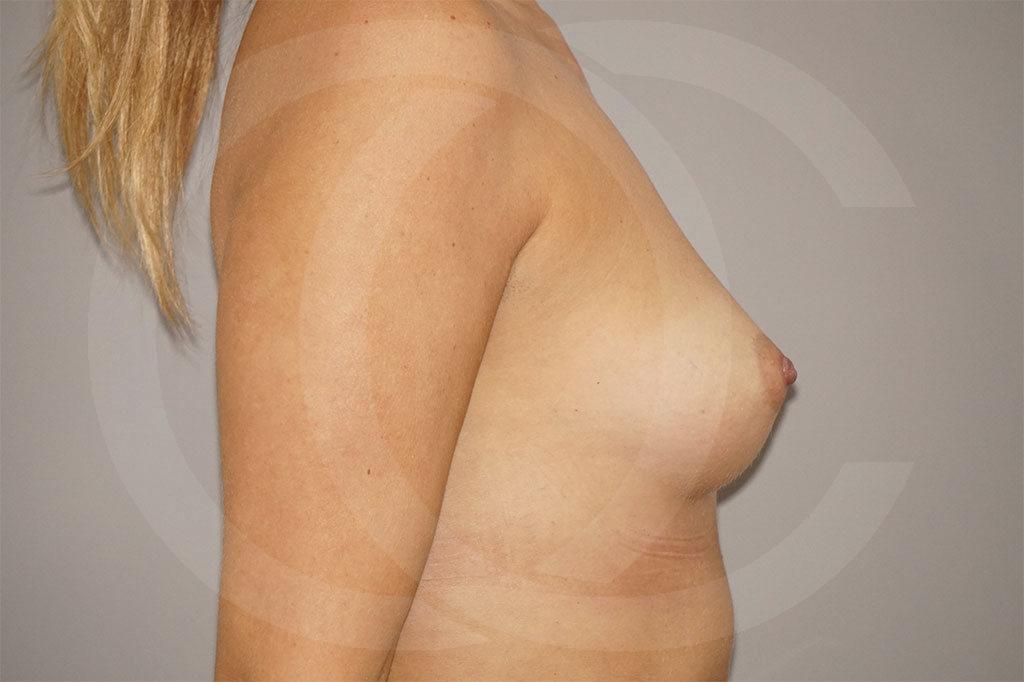 Aumento de senos Madrid foto 280cc Anatómico antes 05