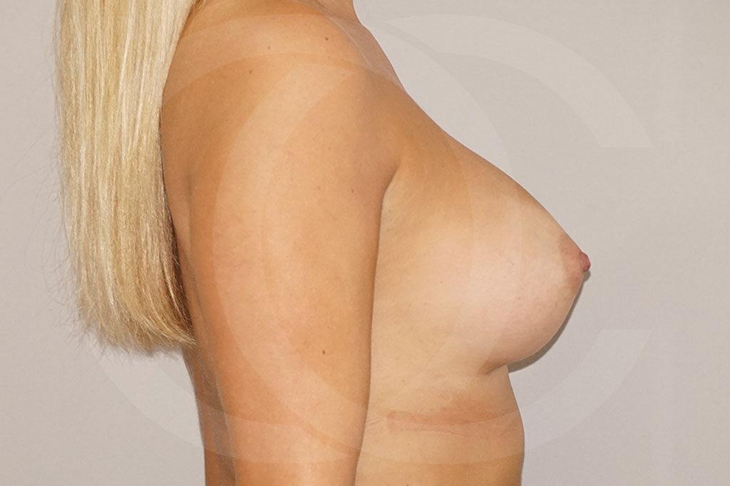 Aumento de senos Madrid foto 280cc Anatómico después 06