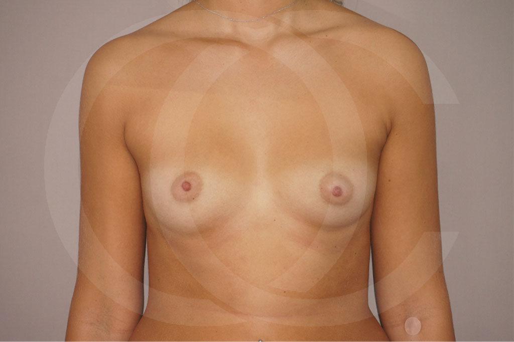 Aumento de senos Madrid foto Nagor 485cc anatómicas antes 01