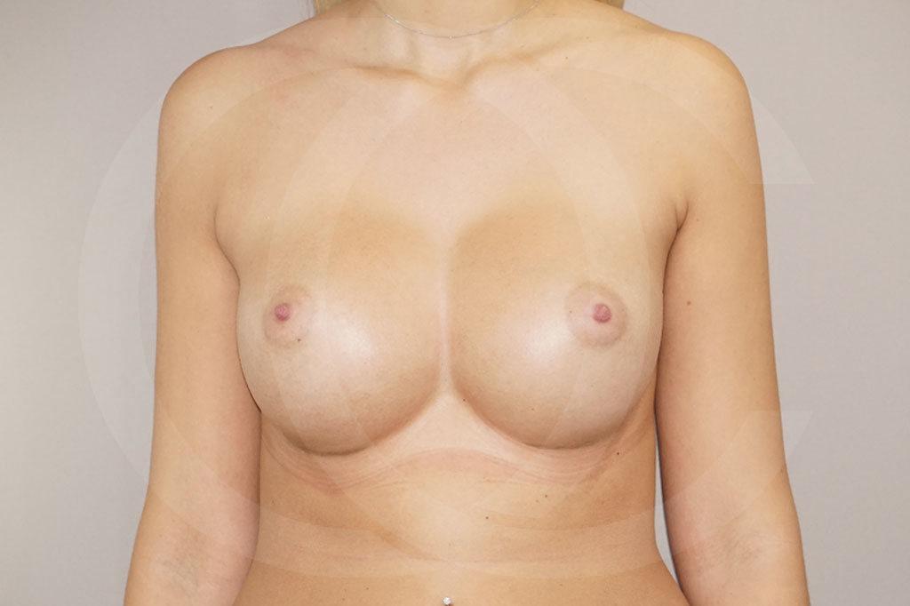Aumento de senos Madrid foto Nagor 485cc anatómicas después 02