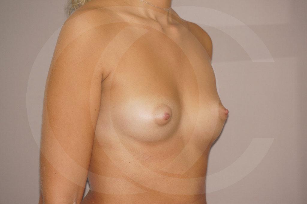 Aumento de senos Madrid foto Nagor 485cc anatómicas antes 03