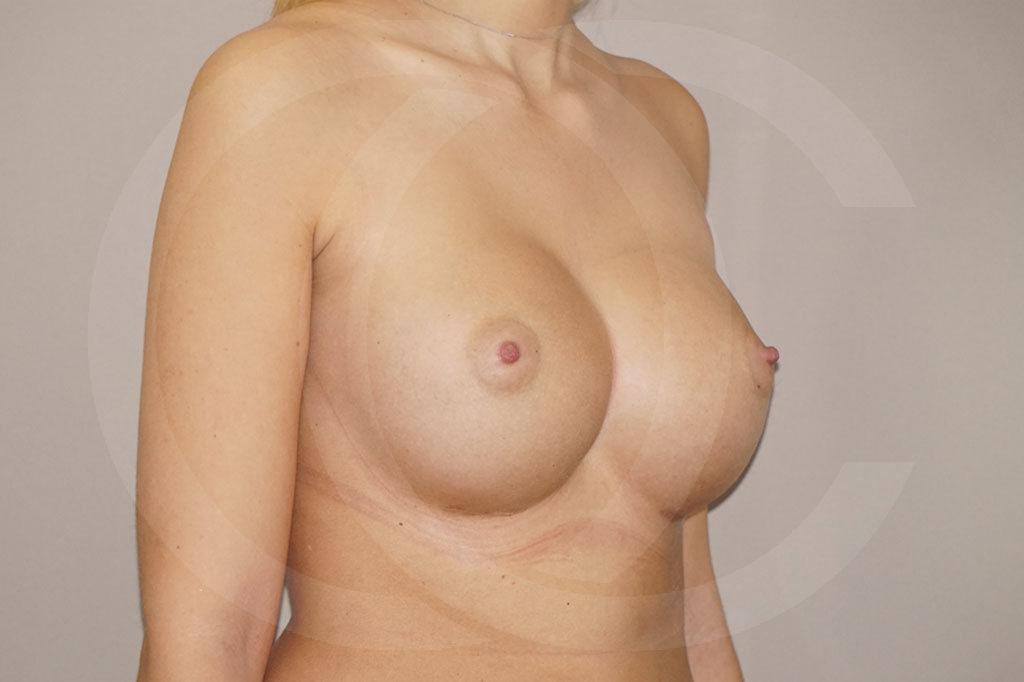 Aumento de senos Madrid foto Nagor 485cc anatómicas después 04