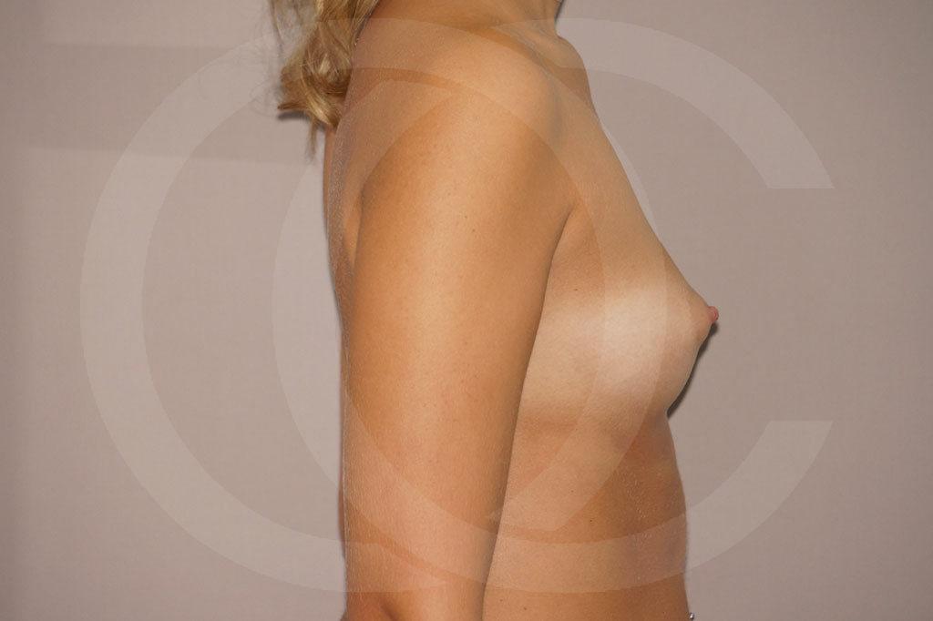 Aumento de senos Madrid foto Nagor 485cc anatómicas antes 05