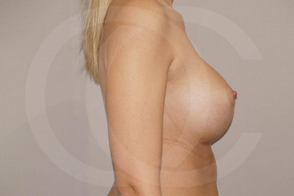 Aumento de senos Madrid foto Nagor 485cc anatómicas después 06