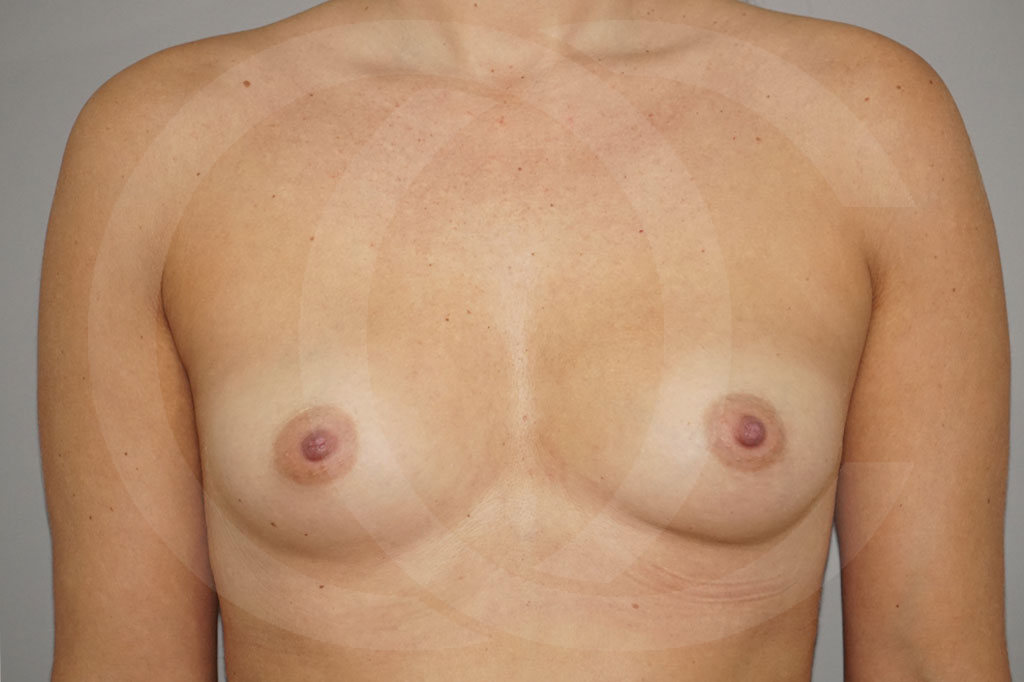 Aumento de senos Madrid foto prótesis 280cc antes 01