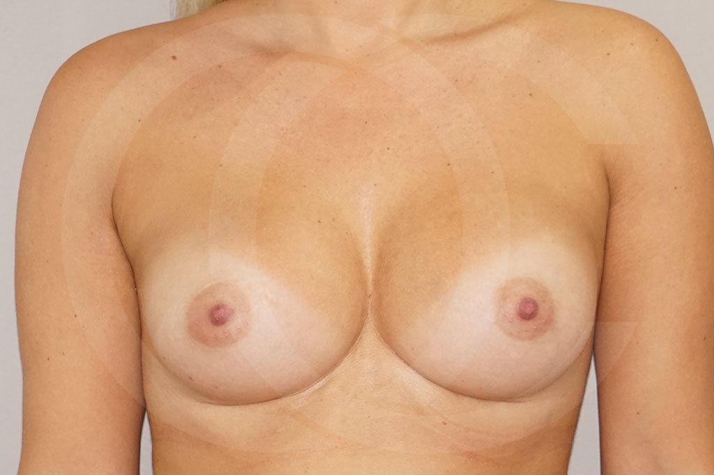 Aumento de senos Madrid foto prótesis 280cc después 02