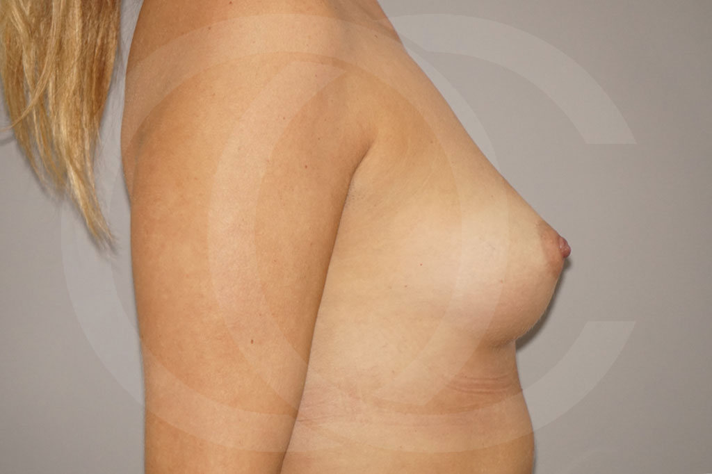 Aumento de senos Madrid foto prótesis 280cc antes 03