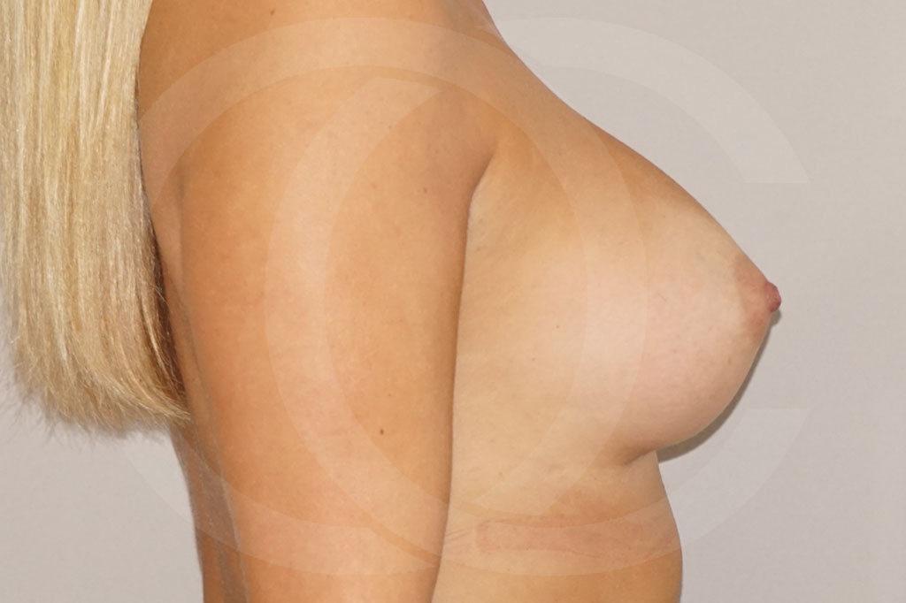 Aumento de senos Madrid foto prótesis 280cc después 04