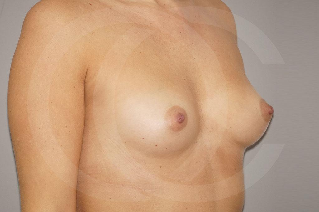 Aumento de senos Madrid foto prótesis 280cc antes 05