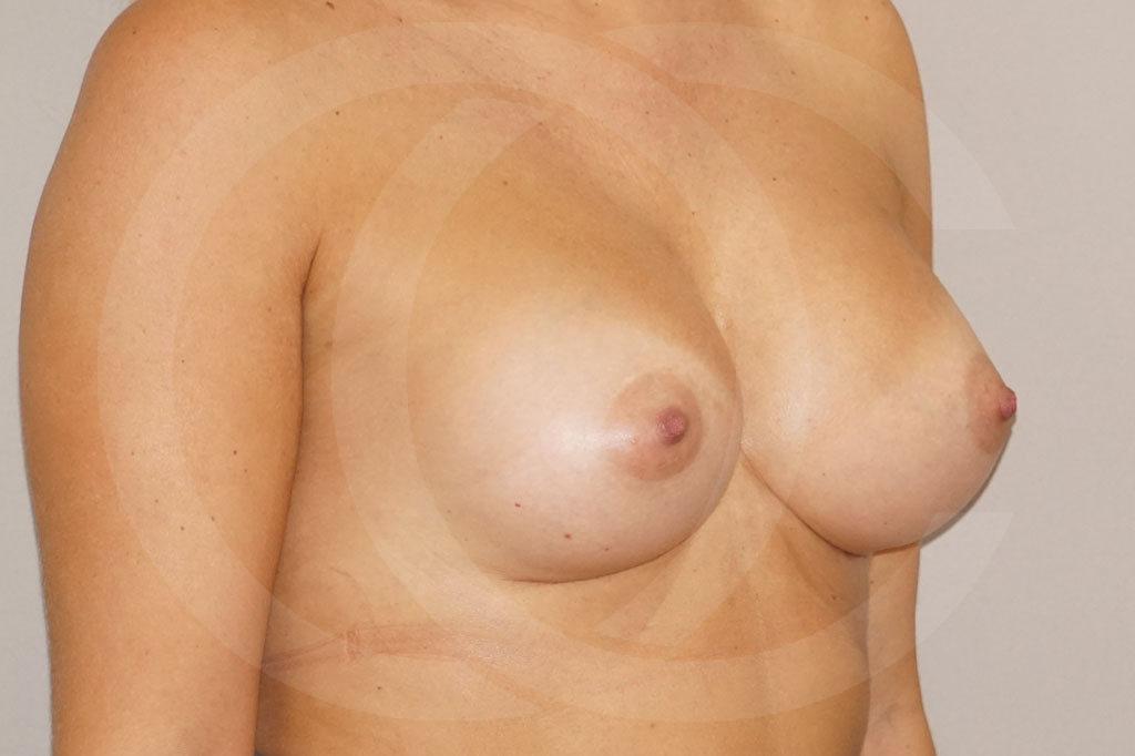 Aumento de senos Madrid foto prótesis 280cc después 06