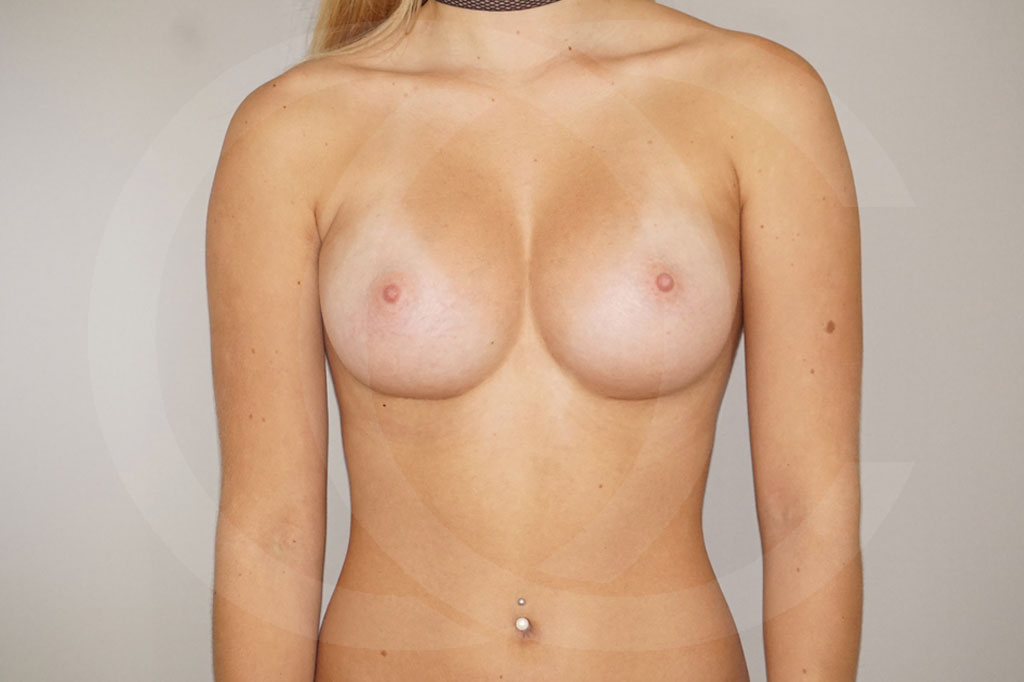 Aumento de senos Madrid foto 300cc anatómicas perfil alto después 02