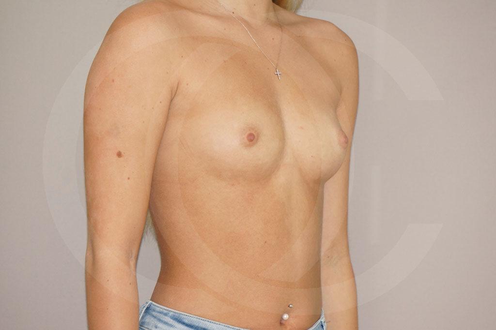 Aumento de senos Madrid foto 300cc anatómicas perfil alto antes 03