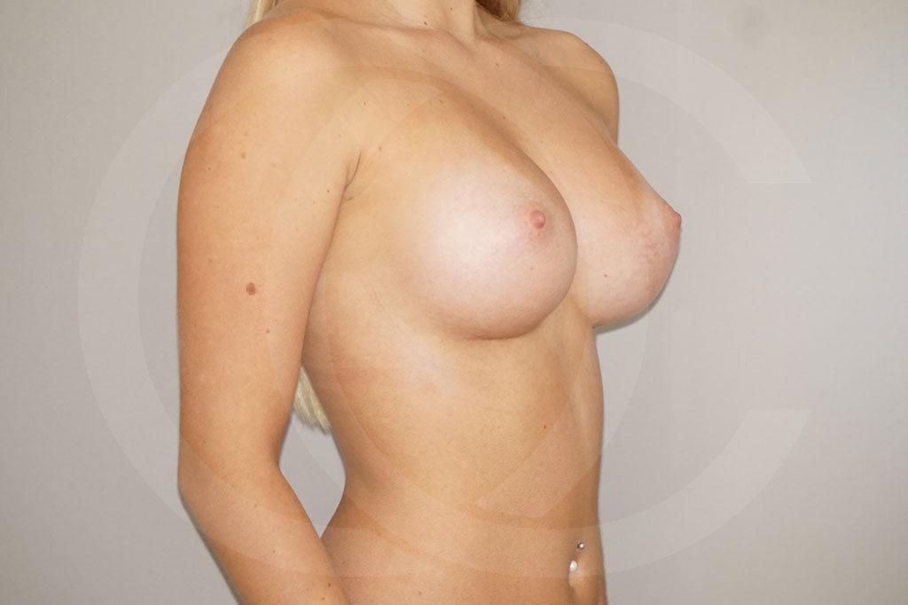 Aumento de senos Madrid foto 300cc anatómicas perfil alto después 04