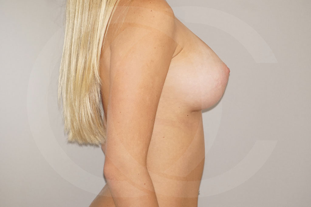 Aumento de senos Madrid foto 300cc anatómicas perfil alto después 06