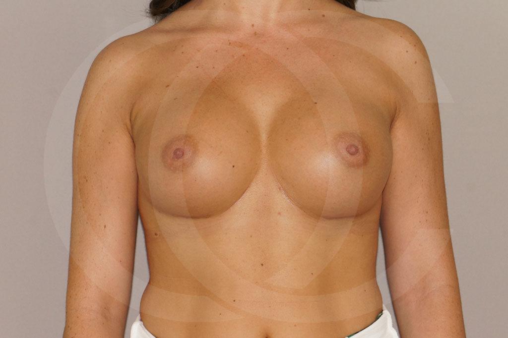 Aumento de senos Madrid foto 350cc redondas perfil alto después 02